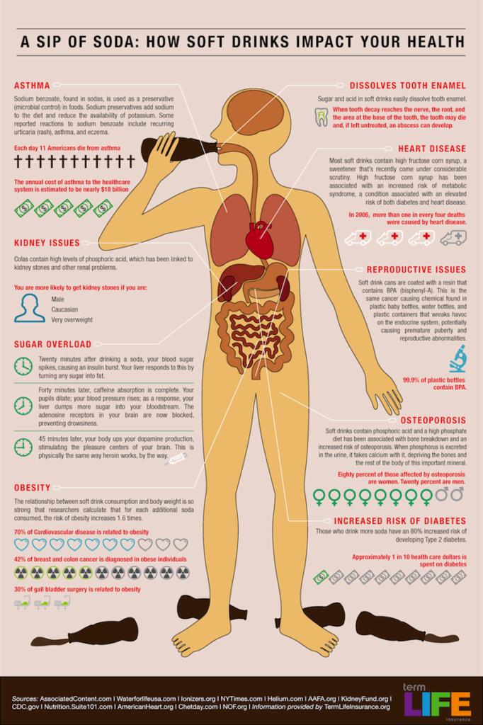 Infograme - Soda